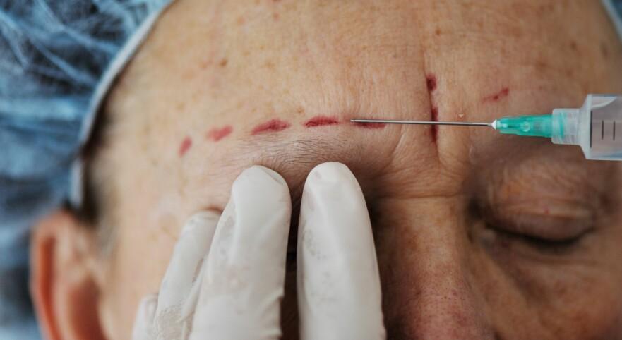 IKKE UNATURLIG: – Et ønske om en kosmetisk forandring i godt voksen alder er på mange måter en naturlig konsekvens av at vi lever lengre, mener kirurg. Foto: Scanpix.