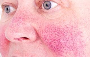 Derfor er 60-åringers hud særlig sårbar nå