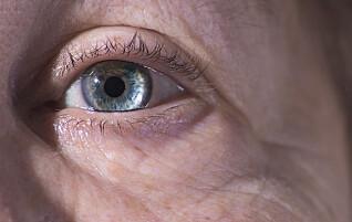Lidelsen er så plagsom at pasienter sier de helst vil fjerne øyet