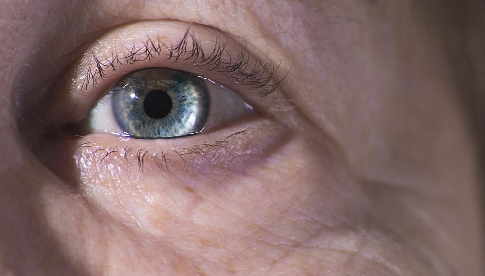 <strong>TETTE ELLER SVIKTENDE TALGKJERTLER:</strong> Rennende, såre, eller irriterte øyne er et symptom. Det er også følelsen av å ha rusk i øyet, lyssensibilitet, ulike synsforstyrrelser og grader av tåkesyn. ILLUSTRASJONSFOTO: Scanpix