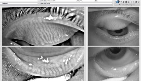 <strong>TALGKJERTLER I ØYELOKKENE:</strong> Talgkjertlene sees som et sebrastripet felt i over- og underlokket. Foto: Tørre øyne-klinikken