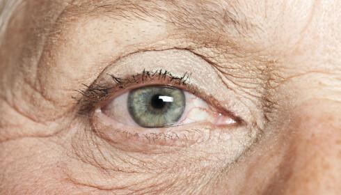 <strong>BYTT TIL BRILLER:</strong> Et av rådene ved tørre øyne, er at du bør bytte fra linser til briller. FOTO: Shutterstock