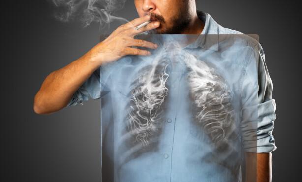 RØYKING HAR SKYLDA: Det er oftest røyk som er skyld i at man utvikler lungekreft. Foto: Krunja / Shutterstock / NTB scanpix.