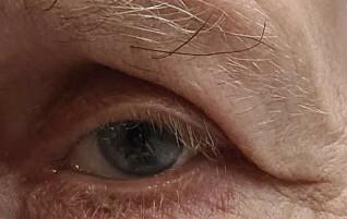 «Måtte løfte øyelokket med fingrene når han snakket»