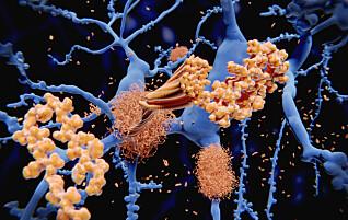 Mulig nytt medikament mot Alzheimer