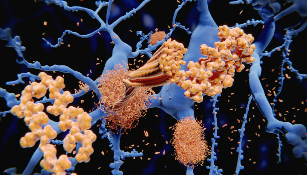 SYKDOM I HJERNEN: Ved Alzheimers sykdom skjer karakteristiske forandringer i hjernen. Det dannes såkalte senile plakk av proteinet beta-amyloid (vist i brunt) og nevrofibrillære floker av proteinet tau (vist i blått). 3D-bilde Juan Gaertner Shutterstock NTB Scanpix