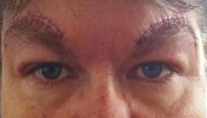 ETTER: Snittet ble lagt i en bue over øyenbrynene. Foto: Privat