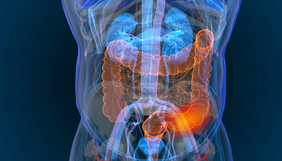ALVORLIG: Tarmkreft er en av kreftformene som tar flest liv i Norge. Foto: Shutterstock NTB
