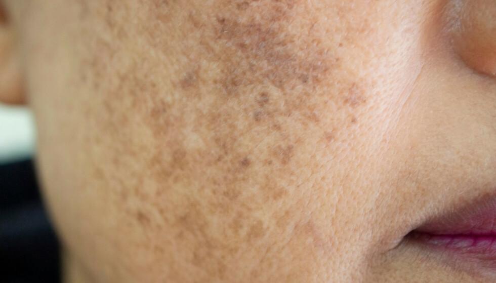 SOLSKADER I HUDEN: Overdreven soling kan forårsake forskjellige former for skader i huden. Her i form av melasma, som gir skjemmende pigmentering i ansiktet. Foto: NTB