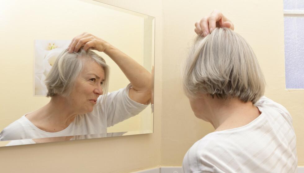 KRAFTIG HÅRTAP? Sykdom eller hormonelle endringer kan forårsake hårtap blant kvinner. Les mer om du kan få støtte til hårforlengelser eller parykk, og hvordan man søker. Foto: NTB