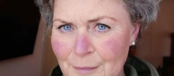 Image: Var 53 da hun fikk diagnosen: - Mye kunne ha vært annerledes