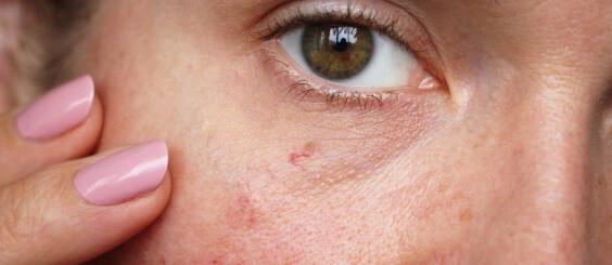 Image: Slik fjerner du pigmentflekker og sprukne blodkar